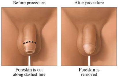 How can I regain sensation in my penis after circumcision